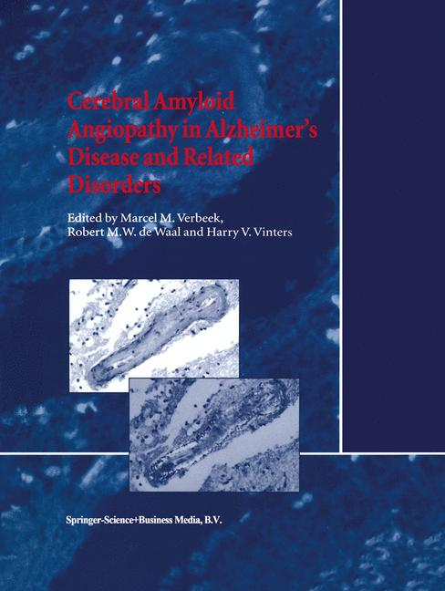 Cerebral Amyloid Angiopathy in Alzheimer's Disease and Related Disorders - Verbeek, M. M.|Waal, R. M. de|Vinters, Harry V.